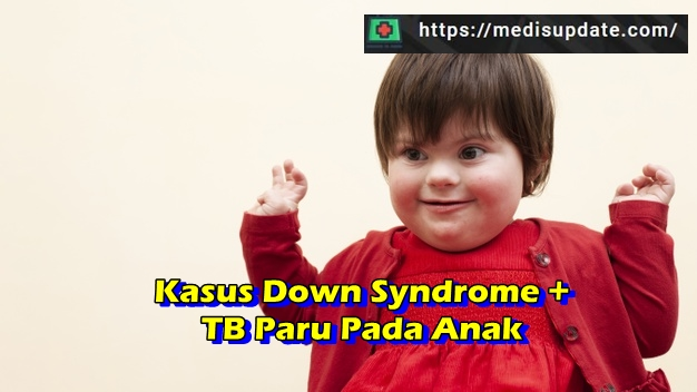 Laporan Kasus Down Syndrome