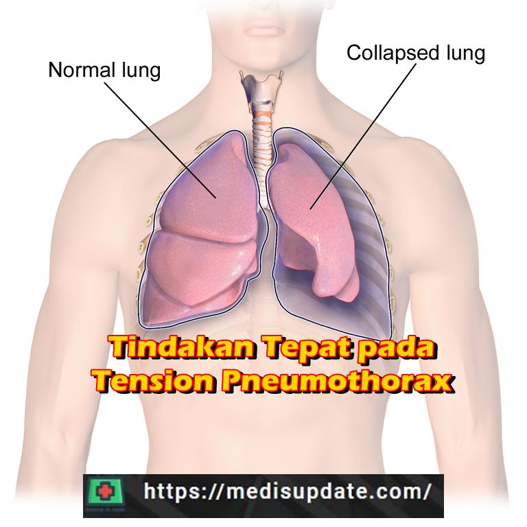 Dekompresi Jarum Pada Pneumothorax