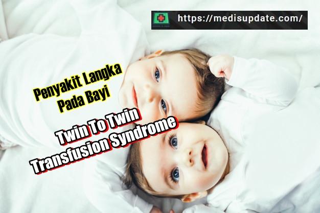 Apa Itu Twin To Twin Transfusion Syndrome atau TTTS
