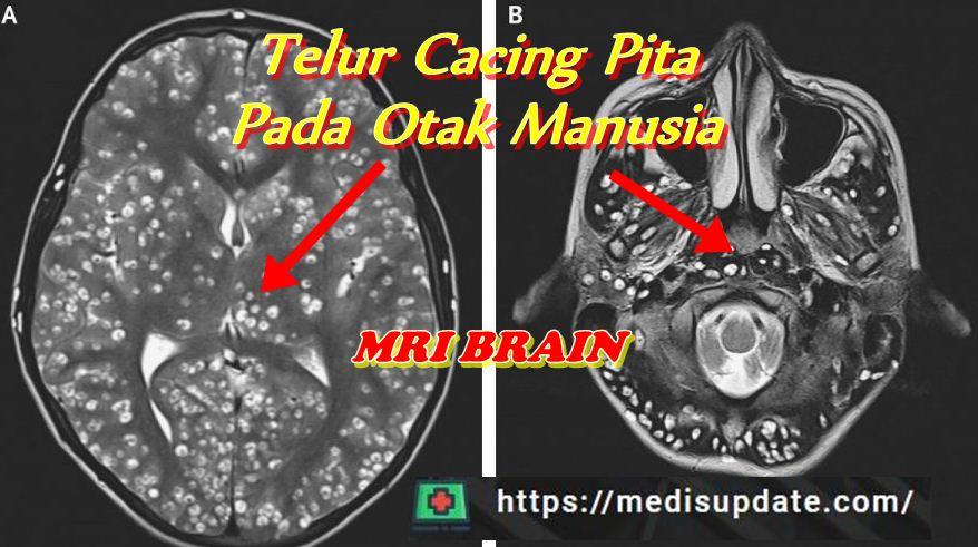 Kasus Telur Cacing Pita Pada Otak Manusia