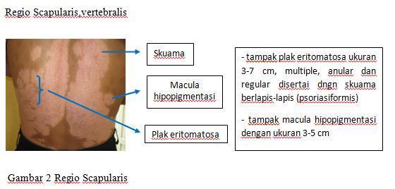laporan kasus psoriasisi vertebra